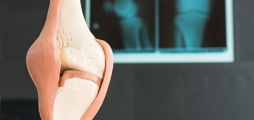 chirurgische-orthopaedie-kniegelenk